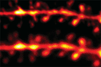 Neuron's dendritic spines