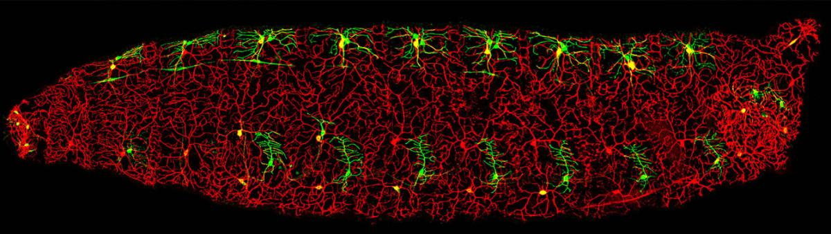 Figure: Two types of dendritic arborization neurons in Drosophila