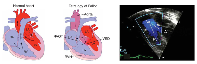 Genetic Causes Of Human Heart Disease Hhmi Org