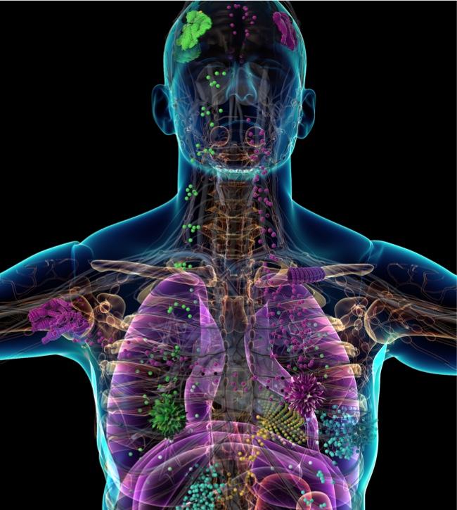 cancer for metastatic