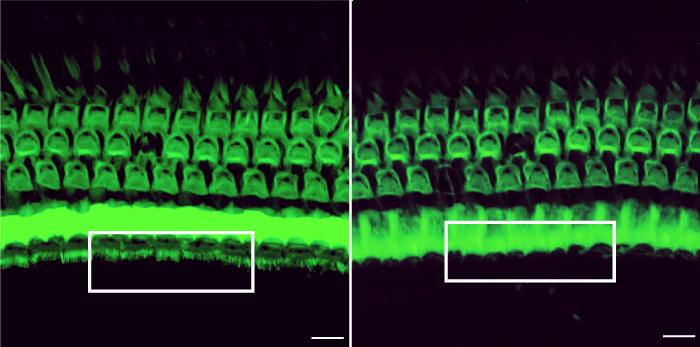 CRISPR Treatment Prevents Hearing Loss in Mice | HHMI org