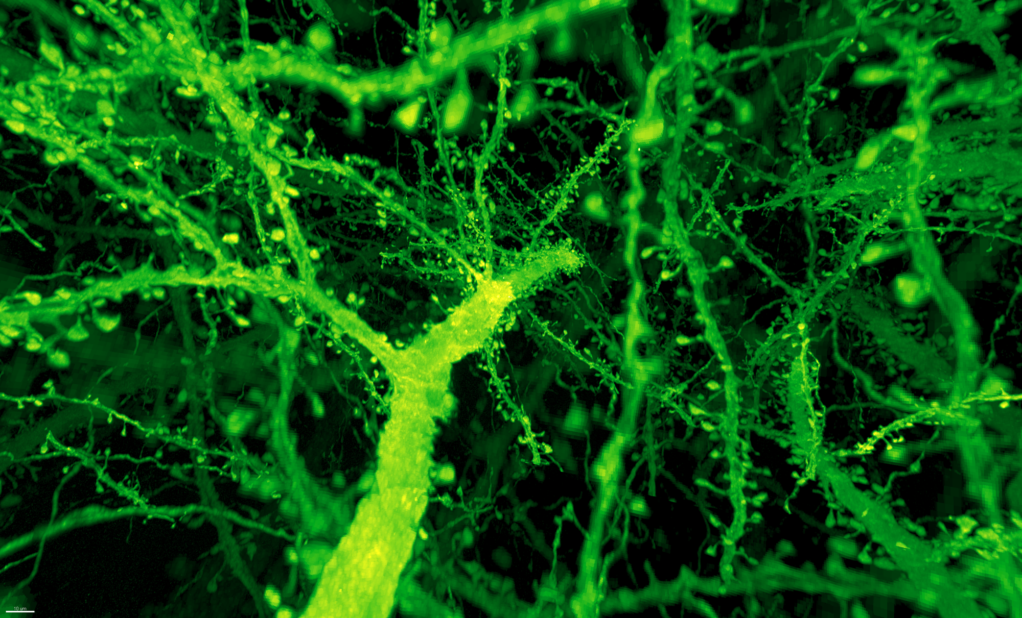 Dendritic spines in mouse brain