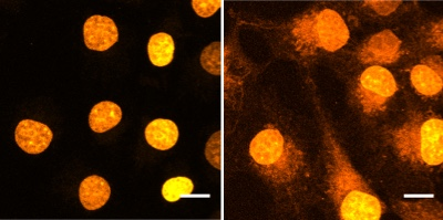 New Fluorescent Dyes Could Advance Biological Imaging | HHMI org