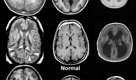 development of the human cerebral cortex hhmiorg